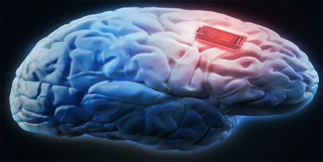 Brain implant combat problem gambling